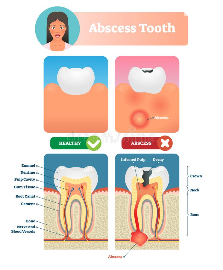 Abscess tooth vector illustration. Labeled medical diagram with structure. stock illustration