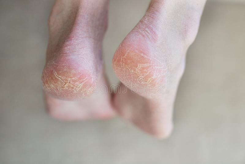 Abschluss herauf gebrochene Fersen Gesundheitsprobleme mit Haut auf Füßen lizenzfreies stockfoto