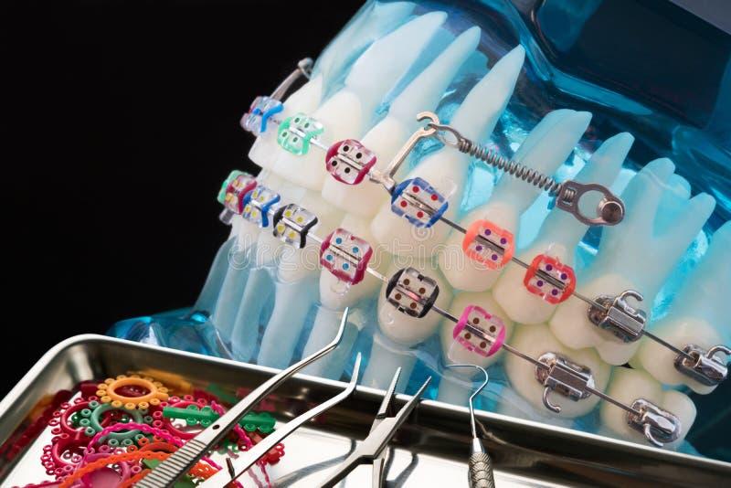 Abschluss herauf Zahnarztwerkzeuge und orthodontisches Modell lizenzfreies stockbild