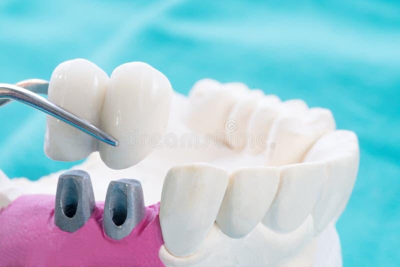 Abschluss herauf zahnmedizinische Prothese und Werkzeuge lizenzfreies stockfoto