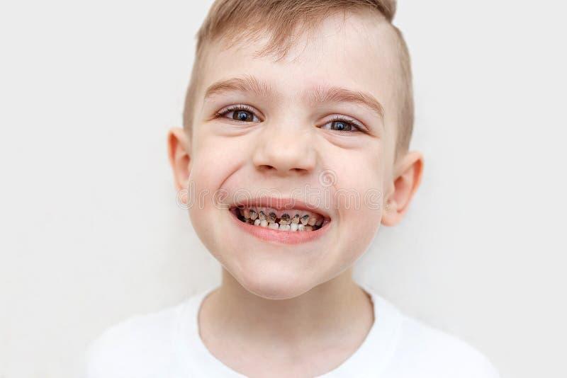 Abschluss schoss oben von den Z?hnen eines Jungen mit Karies Gesundheitswesen-, Mundpflege- und Kindheitskonzept Zahnmedizinische lizenzfreie stockbilder