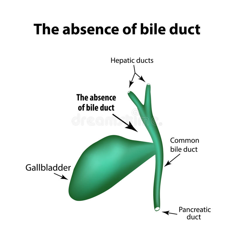 The absence of bile duct. Pathology of the gallbladder. Cholecystitis. The structure of the gallbladder. Infographics. Vector illustration on isolated vector illustration