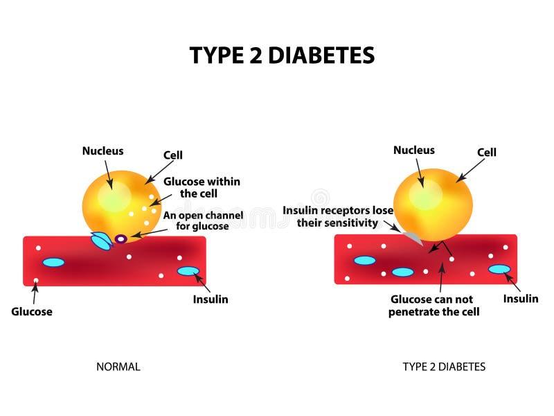 A absorção da glicose pela pilha Tipo - diabetes 2 aumento ilustração royalty free