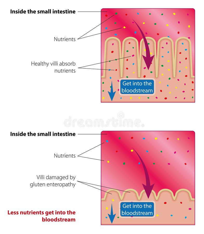 Absorption of nutrients in the small intestine. Healthy and damaged villi. Medical vector illustration royalty free illustration