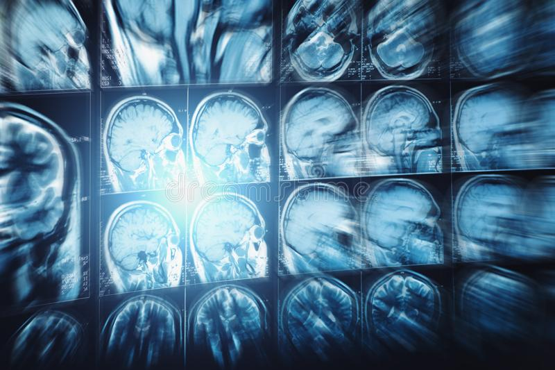 Abstract image with motion blur effect of MRI or magnetic resonance image of head or scull and brain scan. Neurology background stock photography
