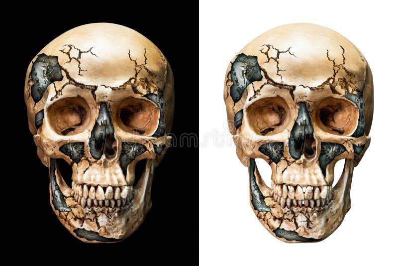 Acciaio dentro il cranio umano immagini stock libere da diritti