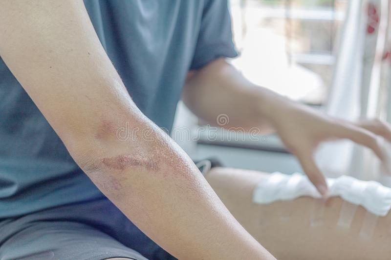 Abrasion wound royalty free stock photos