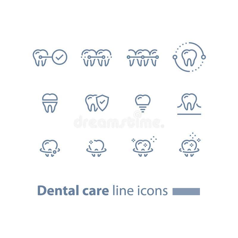 Accolades de dents, soins dentaires, services de stomatologie, nettoyage et blanchiment, implant et couronne, concept de protecti illustration libre de droits