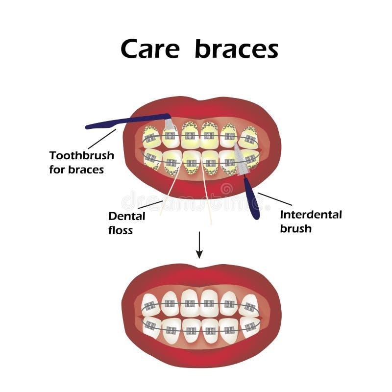 Accolades de soin Dents interdentaires de brosse Fil dentaire Infographie Illustration de vecteur sur le fond illustration de vecteur