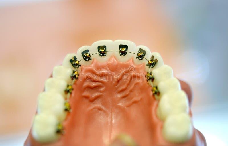 Accolades sur le modèle des dents humaines inférieures image libre de droits