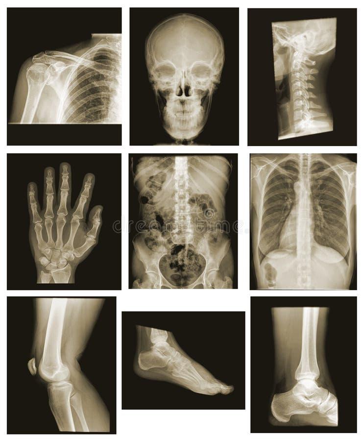 Accumulazione dei raggi X fotografie stock