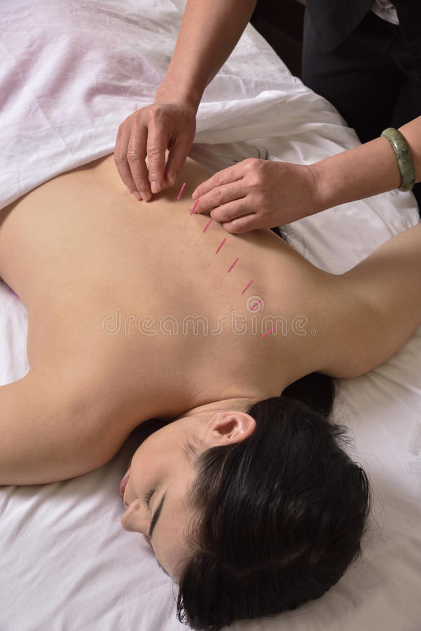 Accupuncture of spine hands on Chinese Medicine stock photos