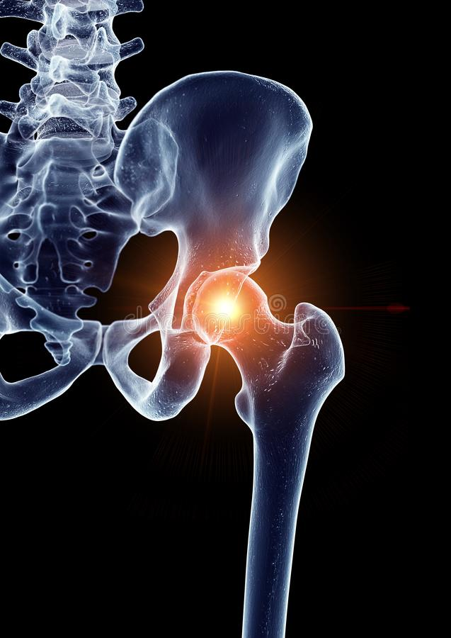 A painful hip joint stock illustration
