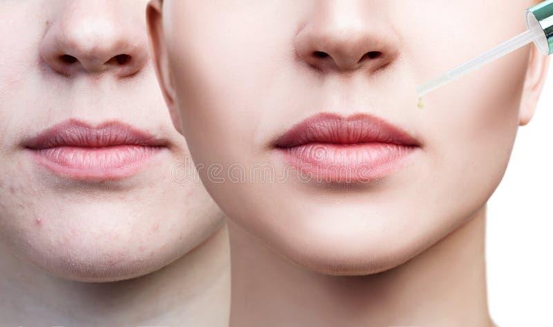 Aceite de los cosméticos que se aplica en los labios femeninos regordetes foto de archivo