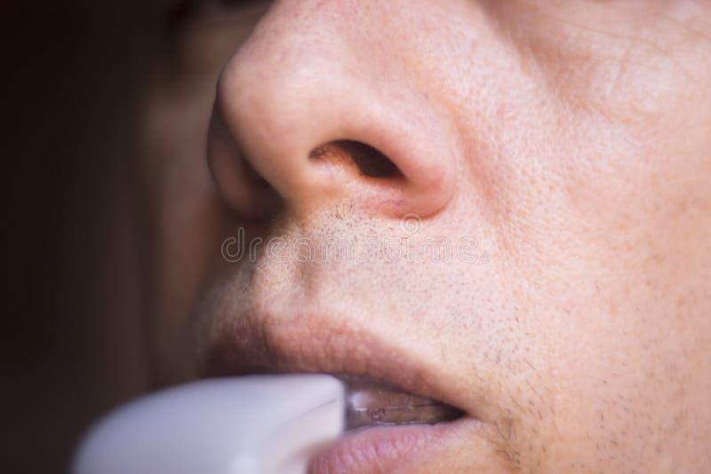 Acelerador dental de los alineadores de los apoyos fotos de archivo