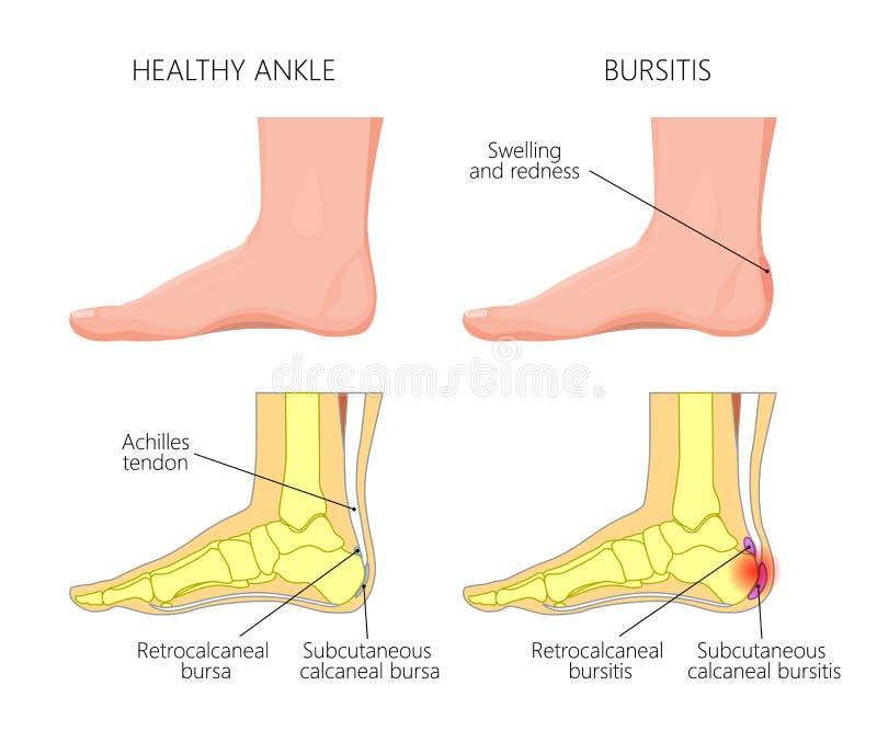 Achilles bursitis ilustracji