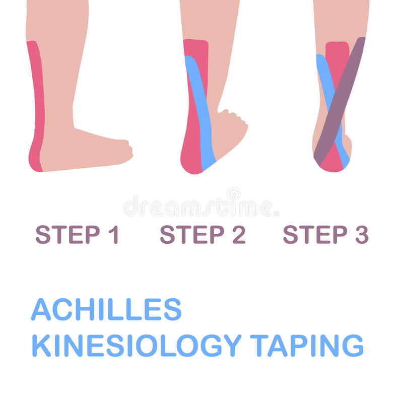 Achilles kinesiology taping. stock illustration