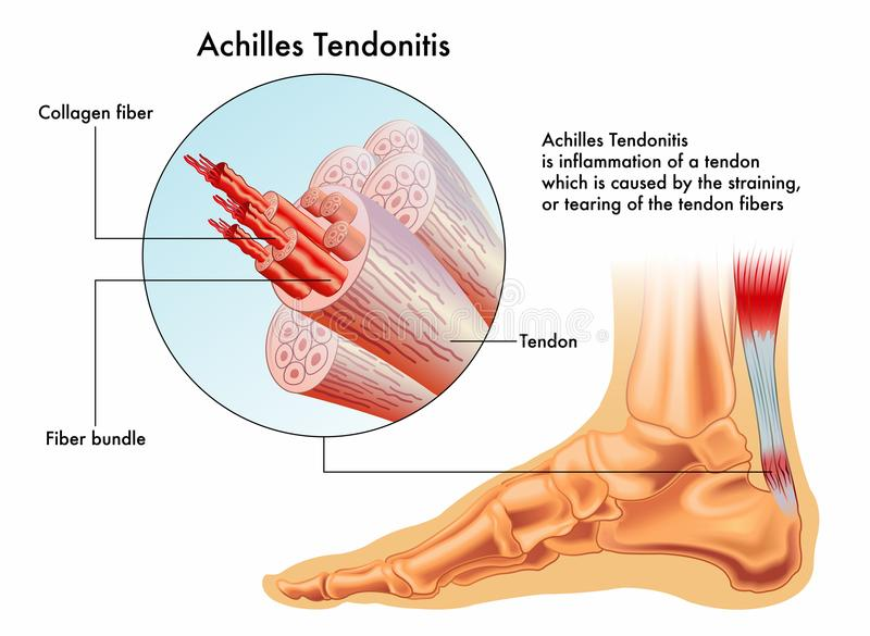 Achilles Tendonitis royaltyfri illustrationer
