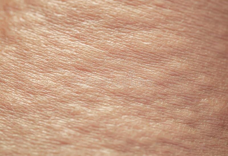 Achtergrond van de textuur ongezonde, geïrriteerde menselijke huid is bedekt met bellen, bulten en blaren van brandwonden en alle stock afbeeldingen