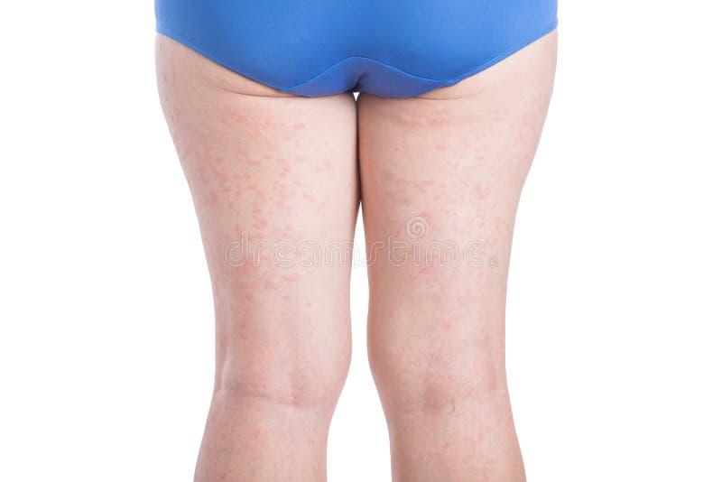 Achterkant van vrouwenbeen met allergieuitbarsting over wit stock afbeeldingen
