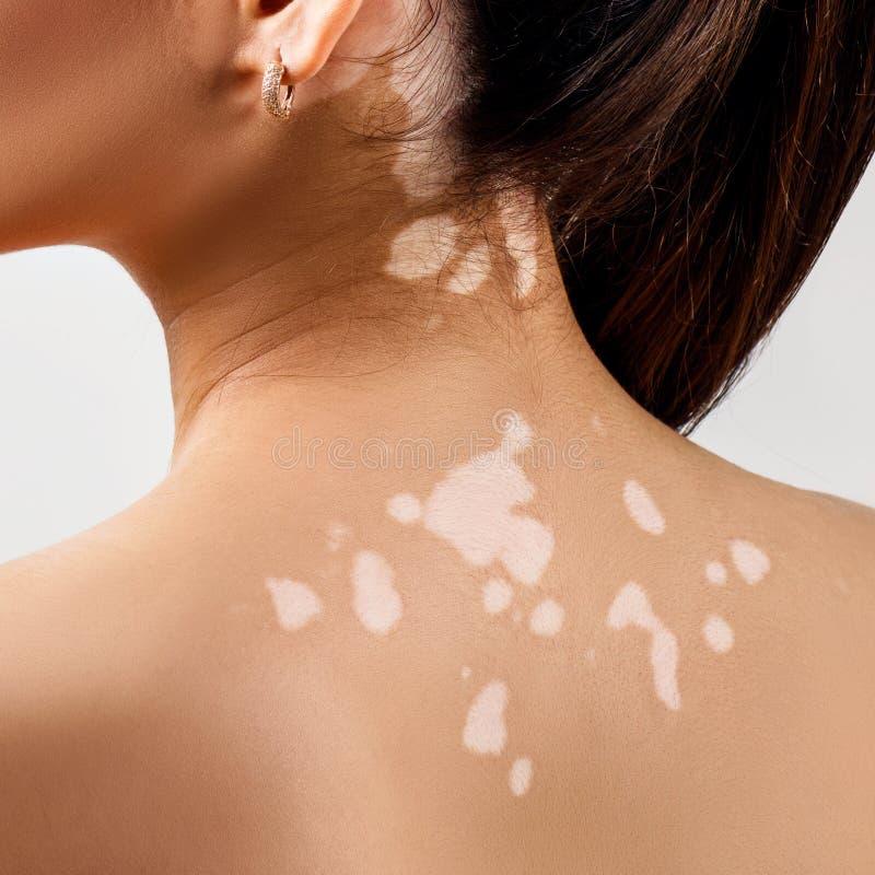 Achtermening over wijfje terug met vitiligo royalty-vrije stock foto's
