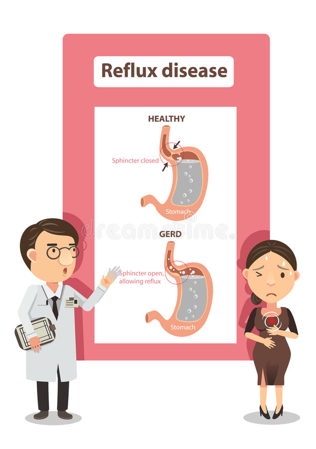 Acid Reflux. Doctor explained to women with heartburn.diagram showing gastric reflux .Info Graphic illustration stock illustration