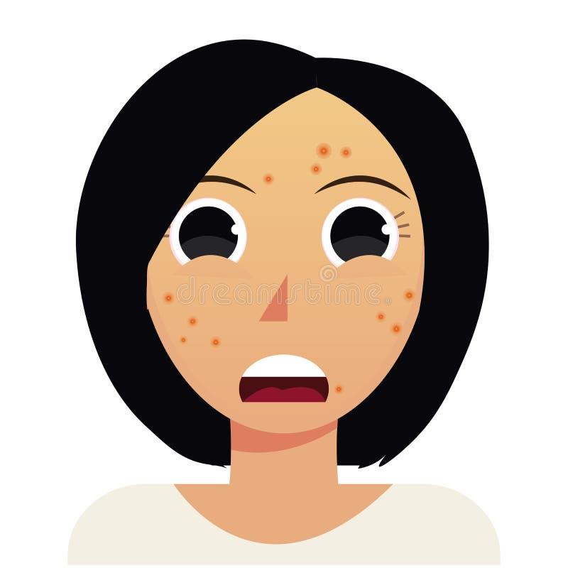 Acné de vecteur, problème de peau de femme illustration libre de droits