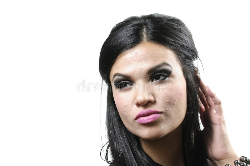 Acne. A woman against a white background with acne royalty free stock images