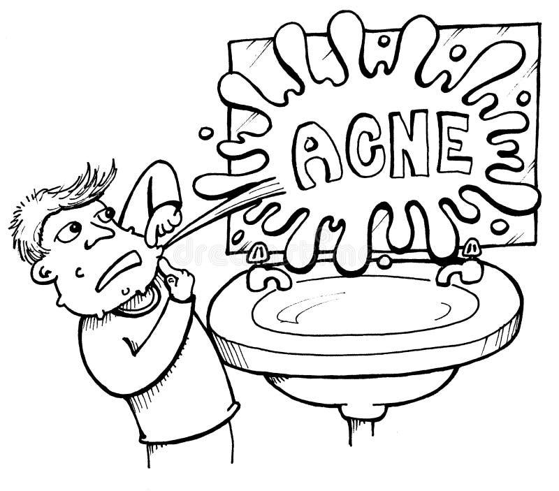 acne royaltyfri illustrationer