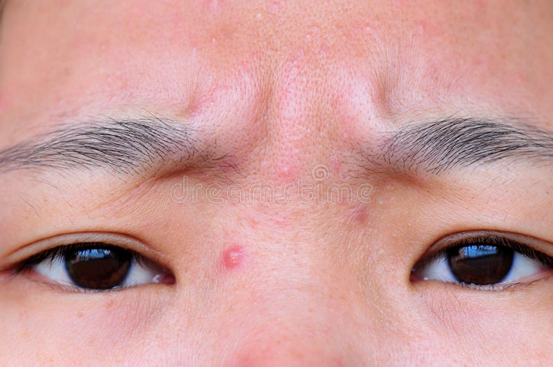 Acne annoying stock images