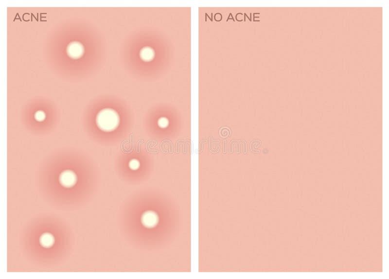 Acne, antes e depois da textura, ilustração royalty free