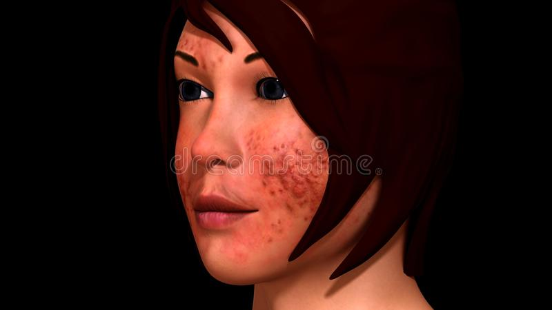 Acne. Is common and is usually treatable. Also called Pimples A skin condition that occurs when hair follicles plug with oil and dead skin cells. Symptoms range royalty free stock photo