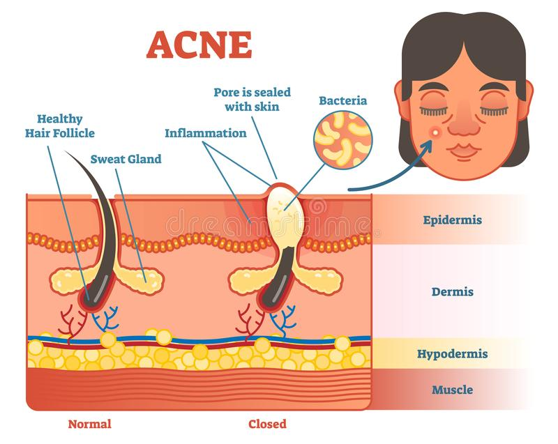 Acne diagram illustration with hair, pimple, skin layers and structure. Female face alongside. Educational medical informat. Ion stock illustration