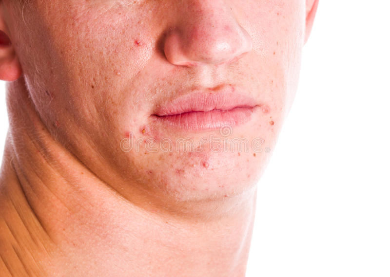 Acne Face. Face with acne problem skin isolated stock images
