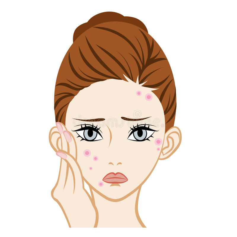 Acne - Facial Skin Trouble Stock Vector  Illustration Of Treatment