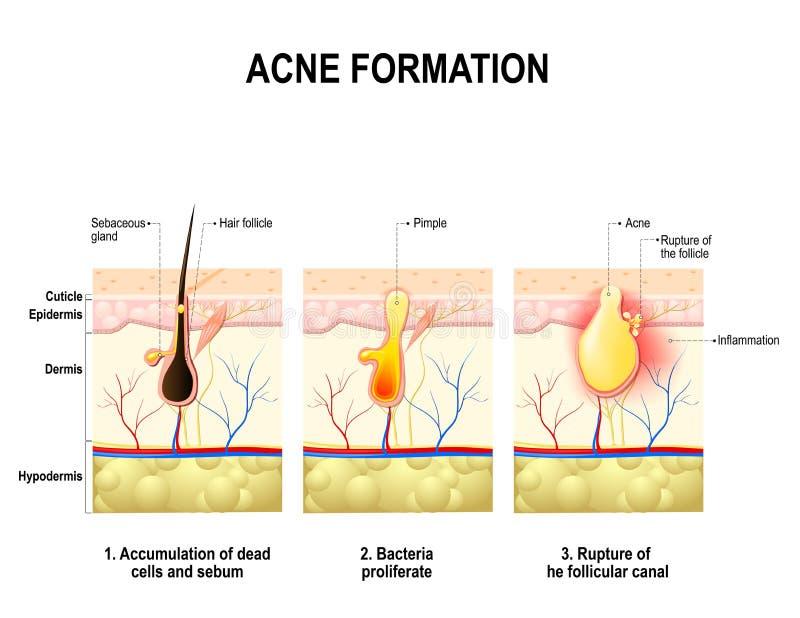 Acne formation. human skin. royalty free illustration