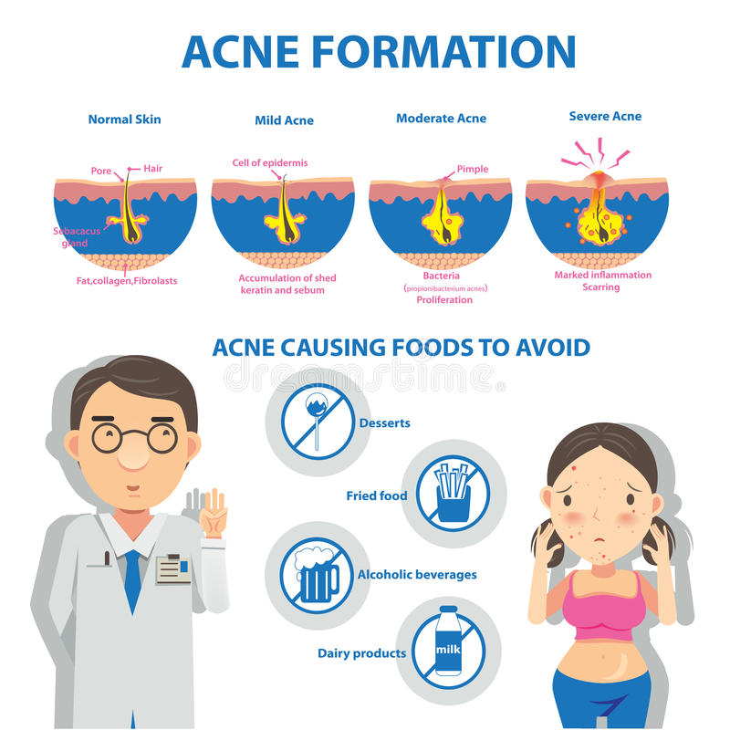Acne vector illustration