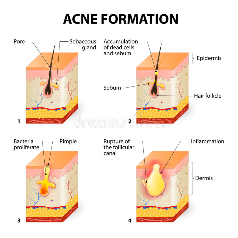 Acne formation. Formation of skin acne or pimple. The sebum in the clogged pore promotes the growth of a certain bacteria called Propionibacterium Acnes. This royalty free illustration