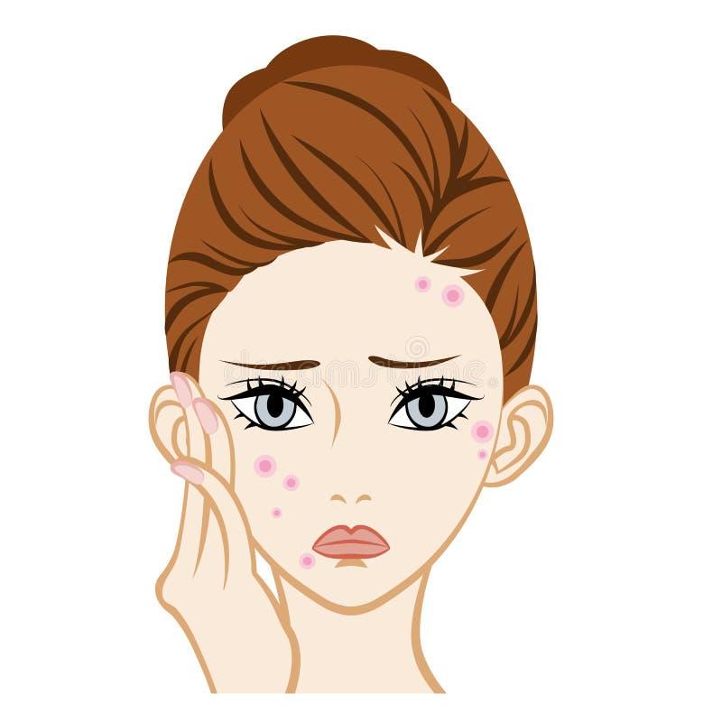 Acne - Gezichtshuidprobleem stock illustratie