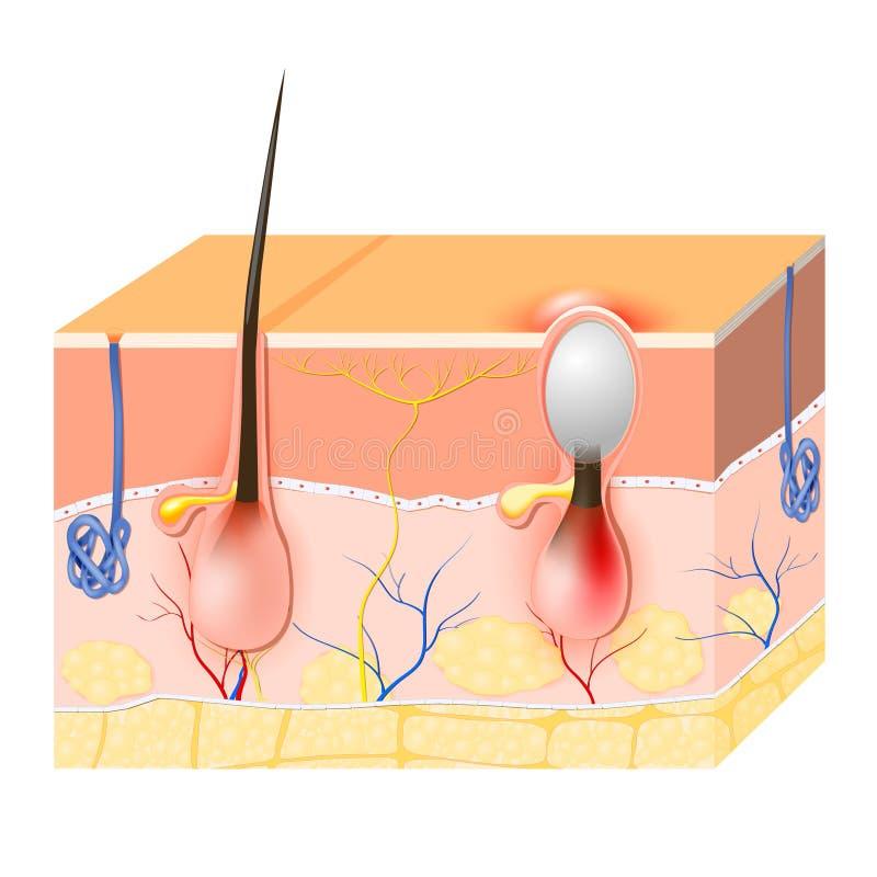 acne Malattia della pelle royalty illustrazione gratis
