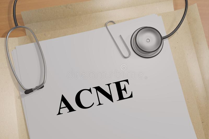 ACNE - medical concept. 3D illustration of ACNE title on a medical document, adult, beautiful, beauty, blemish, care, compare, complexion, correction, cosmetic royalty free illustration