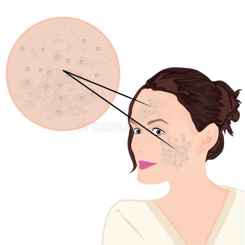 Acne op een gezicht vector illustratie