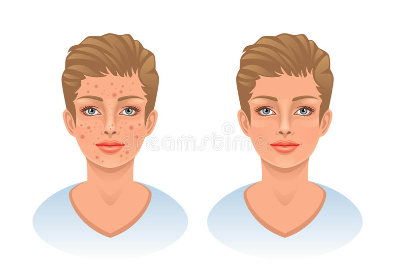 Download Acne stock vector. Image of facial, makeup, illustration - 30503260