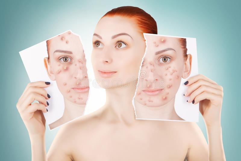 Acne problems, red haired woman portrait over blue background royalty free stock images