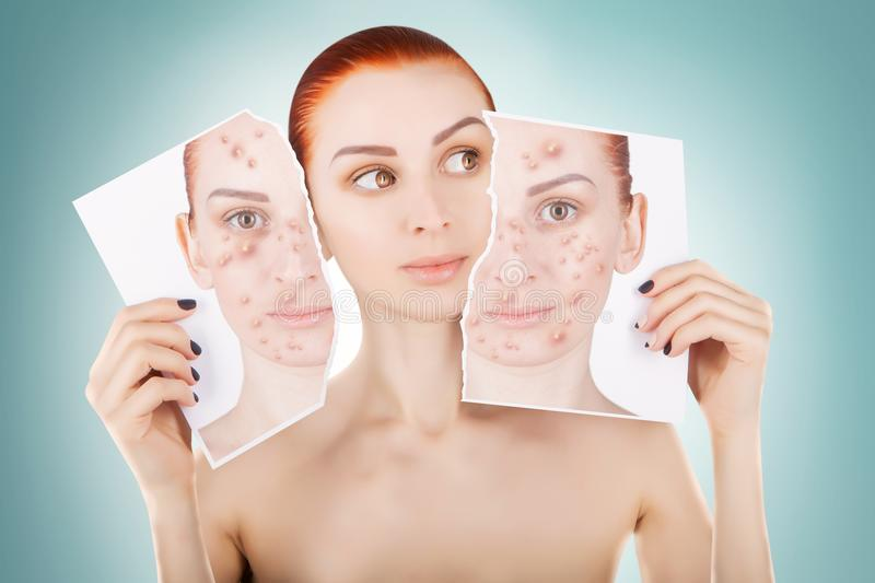 Acne problems, red haired woman portrait over blue background stock photography