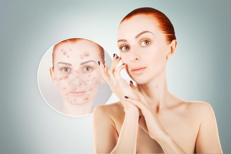 Acne problems, red haired woman portrait over blue background stock images