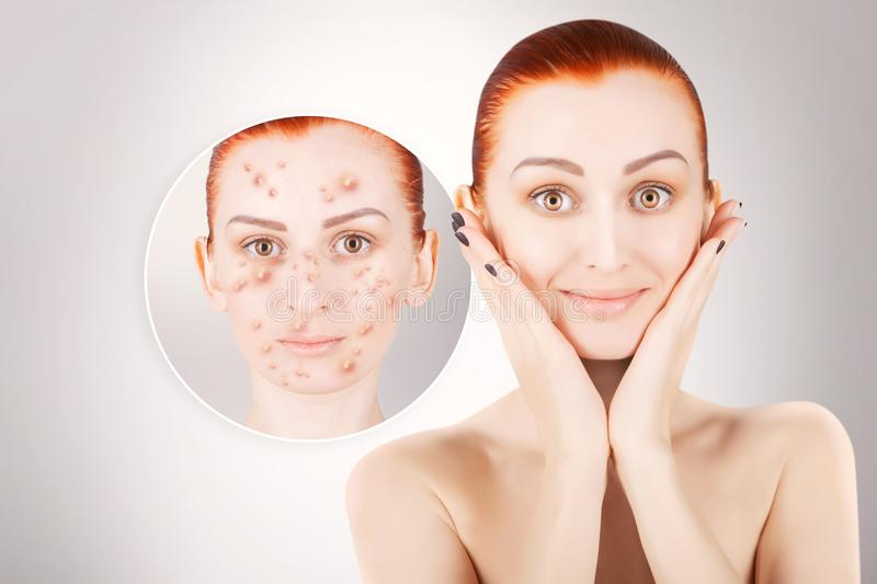 Acne problems, red haired woman portrait over grey background royalty free stock images