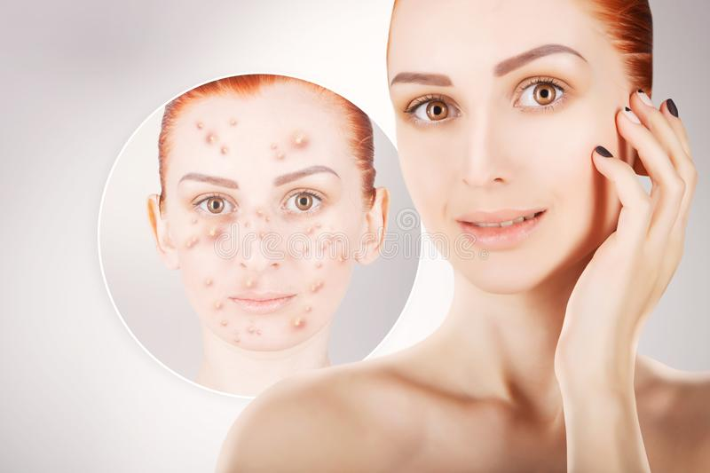Acne problems, red haired woman portrait over grey background royalty free stock photos