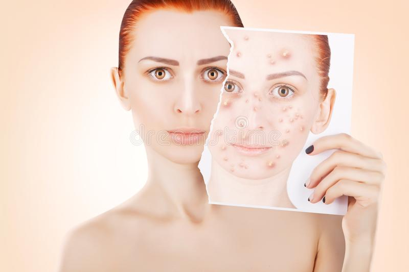 Acne problems, red haired woman portrait over pink background royalty free stock photos