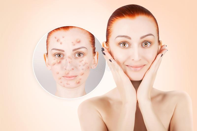 Acne problems, red haired woman portrait over pink background stock images